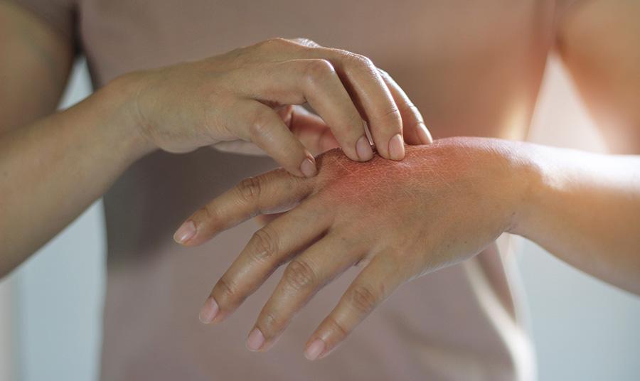 Wir unterscheiden mehrere Arten von Ekzemen. Es gibt zum einen Kontaktekzeme, die durch den direkten Hautkontakt mit z.B. Nickel in Schmuck verursacht werden.